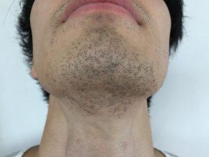髭 永久脱毛 写真